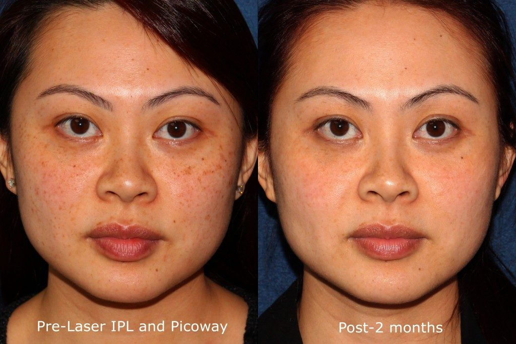 Actual un-retouched patient before and after IPL and Picoway laser treatment for brown spots by Dr. Wu. Disclaimer: Results may vary from patient to patient. Results are not guaranteed.