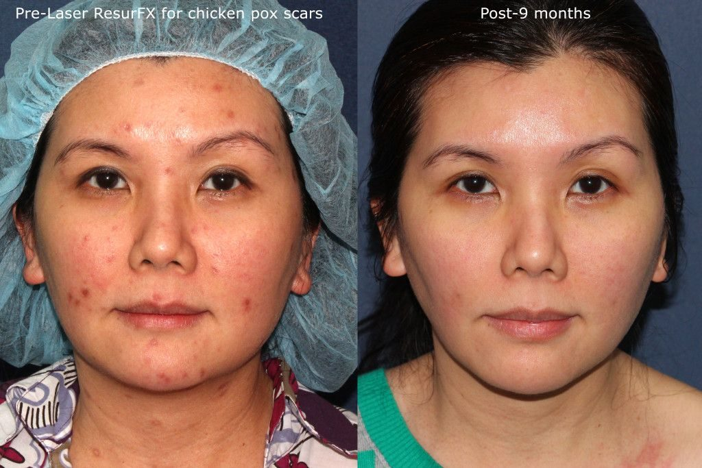 Actual un-retouched patient before and after ResurFX laser treatment for chickenpox scars by Dr. Goldman. Disclaimer: Results may vary from patient to patient. Results are not guaranteed.