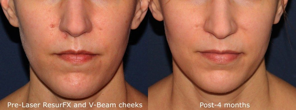 Actual un-retouched patient before and after ResurFX and Vbeam laser to treat facial redness on cheeks by Dr. Wu. Disclaimer: Results may vary from patient to patient. Results are not guaranteed.