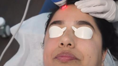 clear + brilliant aging skin laser