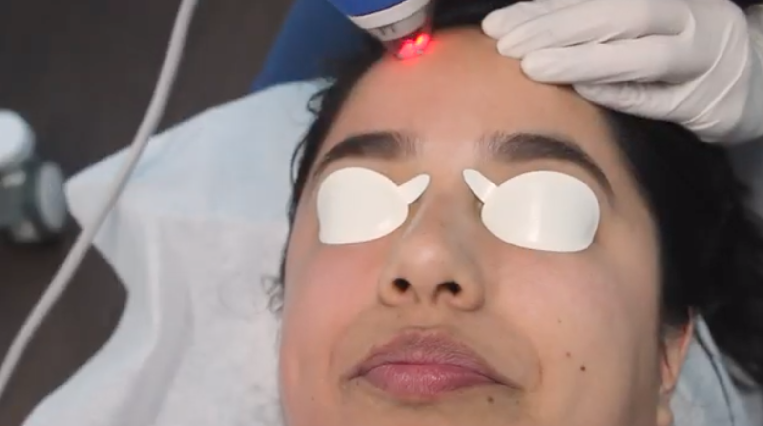 clear + brilliant aging skin laser