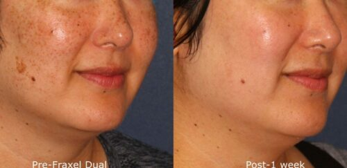 laser resurfacing treatment results from Cosmetic Laser Dermatology in San Diego