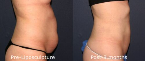 Before and after side image of liposculpture treatment on a female's abdomen performed by Dr. Butterwick at our San Diego medi spa
