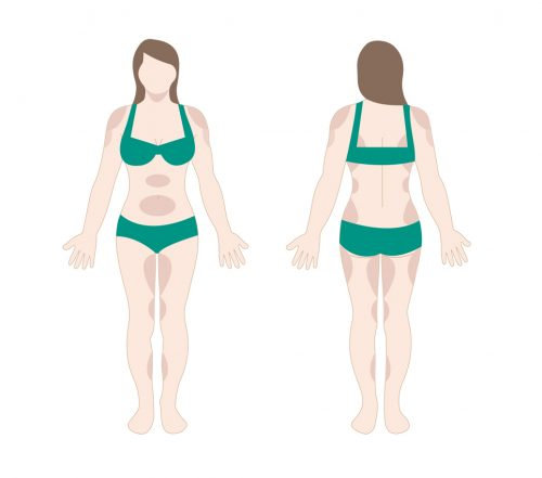 liposculpture body contouring diagram in san diego, ca