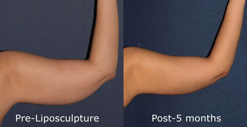 Actual un-retouched patient before and after liposuction treatment to sculpt the upper arms by Dr. Goldman. Disclaimer: Results may vary from patient to patient. Results are not guaranteed.