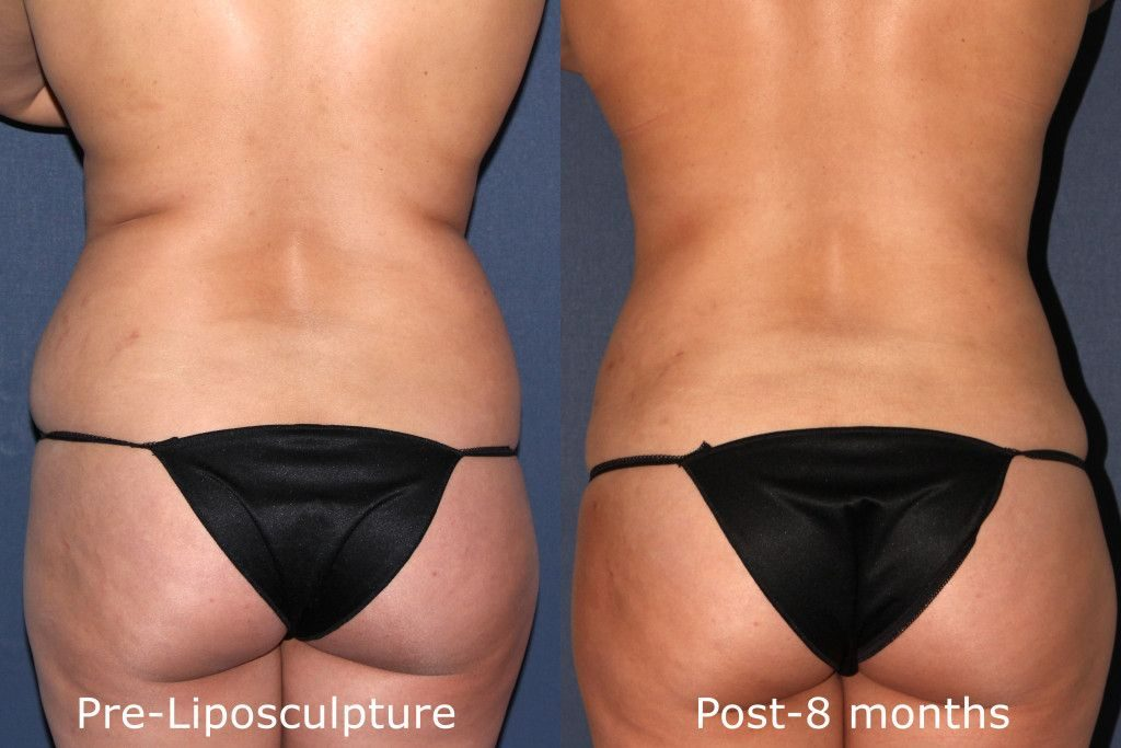 Actual un-retouched patient before and after liposuction treatment for butt sculpting by Dr. Fabi. Disclaimer: Results may vary from patient to patient. Results are not guaranteed.