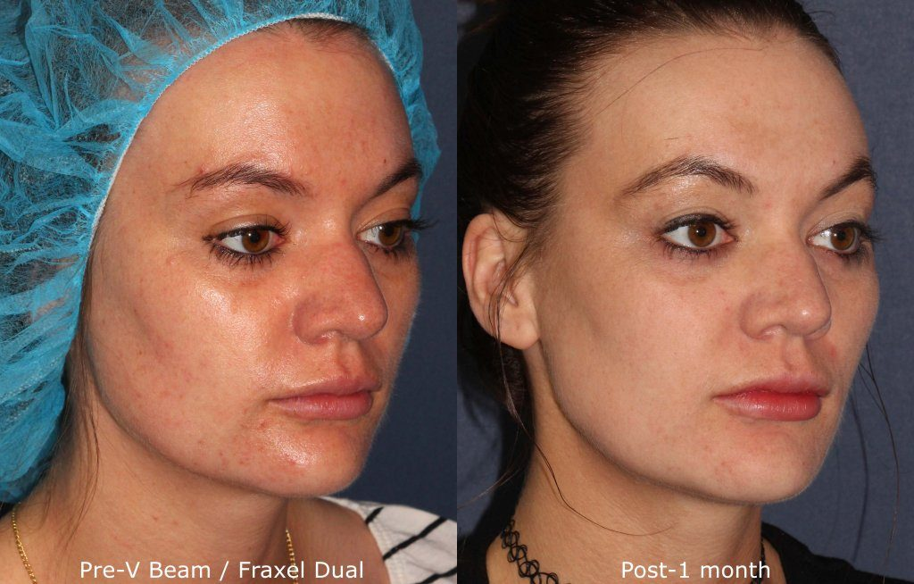 Actual un-retouched patient before and after Vbeam and Fraxel Dual to treat melasma by Dr. Fabi. Disclaimer: Results may vary from patient to patient. Results are not guaranteed.