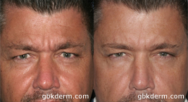 mens botox treatment in san diego, ca