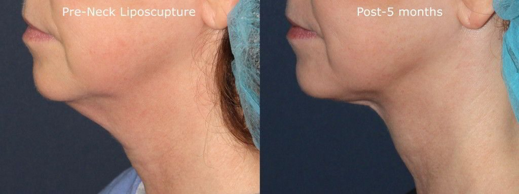 Actual un-retouched patient before and after liposculpture to reduce submental fat and contour the neck by Dr. Goldman. Disclaimer: Results may vary from patient to patient. Results are not guaranteed.