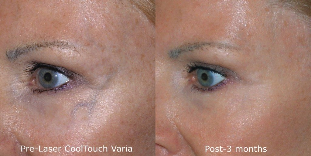 Actual un-retouched patient before and after CoolTouch Varia treatment for veins around the eyes by Dr. Groff. Disclaimer: Results may vary from patient to patient. Results are not guaranteed.