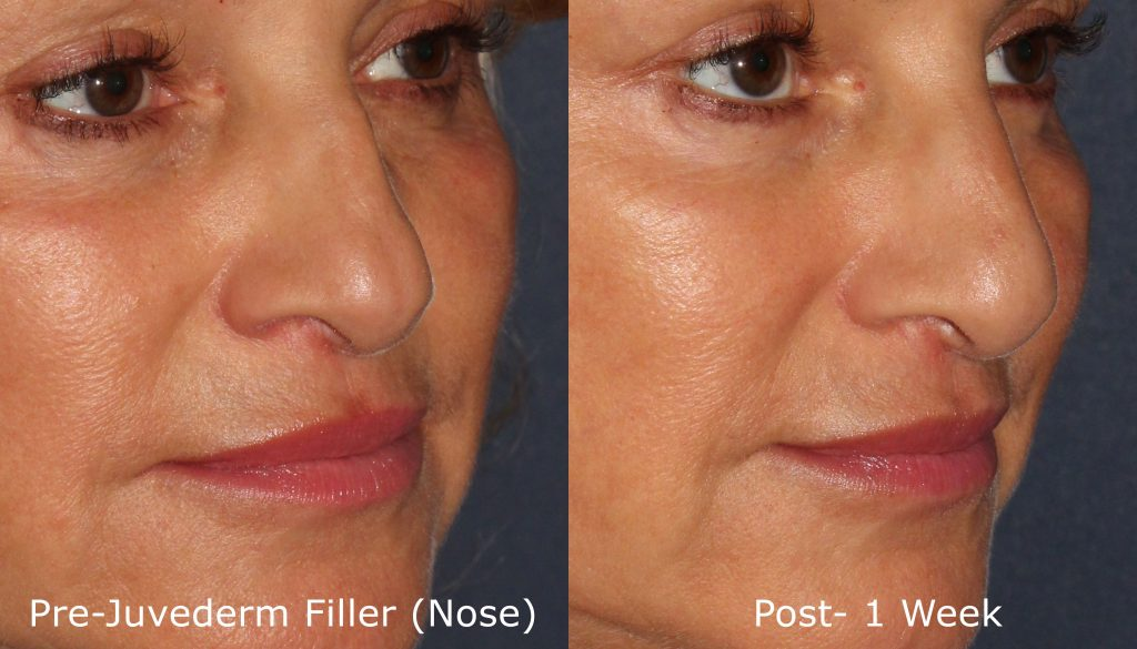 non-surgical rhinoplasty results in San Diego