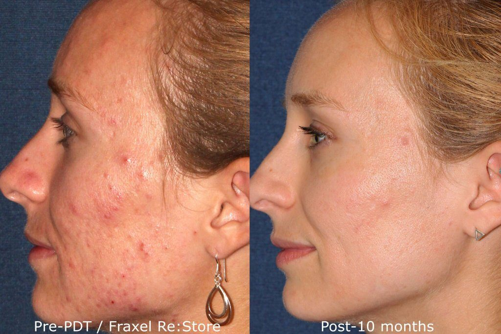 Actual un-retouched patient before and after Fraxel Restore and photodynamic therapy (PDT) to treat acne by Dr. Fabi. Disclaimer: Results may vary from patient to patient. Results are not guaranteed.