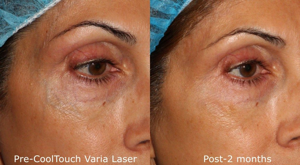 Actual un-retouched patient before and after CoolTouch Varia treatment for facial veins by Dr. Goldman. Disclaimer: Results may vary from patient to patient. Results are not guaranteed.