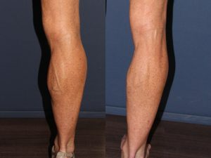 Phlebectomy Treatment Right Leg