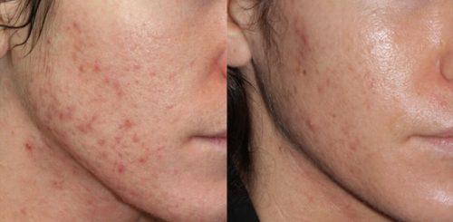 blue light pimple zits removal