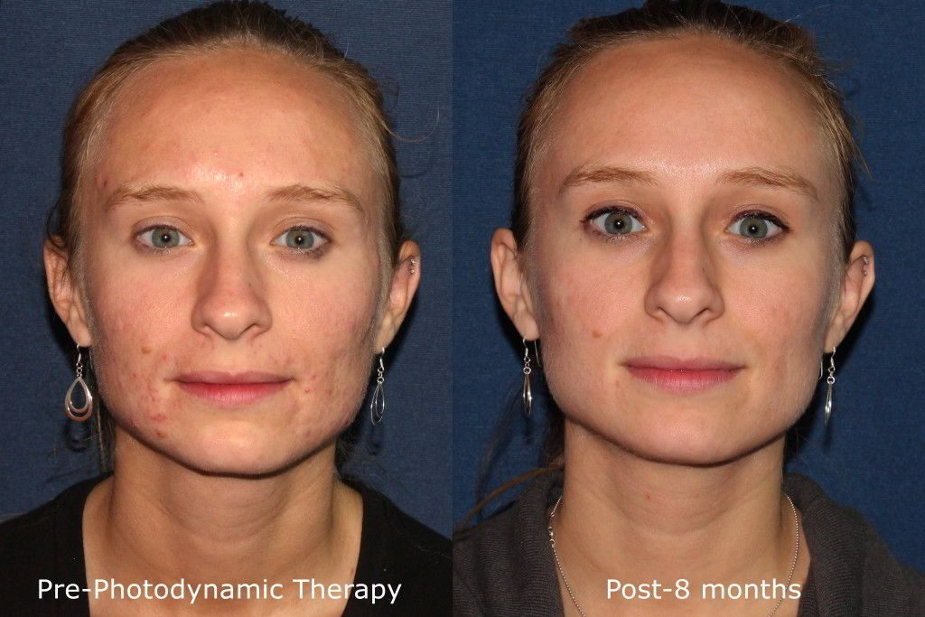 Actual un-retouched patient before and after photodynamic  therapy (PDT) to reduce pimples and breakouts by Dr. Fabi. Disclaimer: Results may vary from patient to patient. Results are not guaranteed.