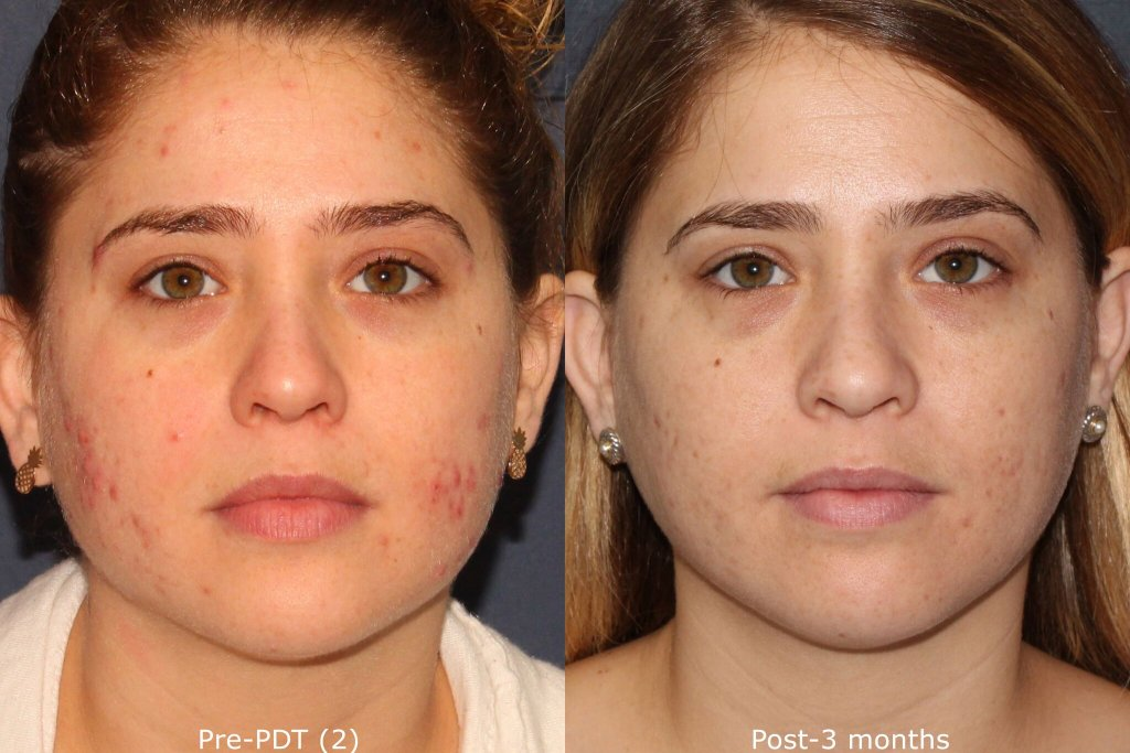 Actual un-retouched patient before and after photodynamic therapy (PDT) for acne by Dr. Wu. Disclaimer: Results may vary from patient to patient. Results are not guaranteed.