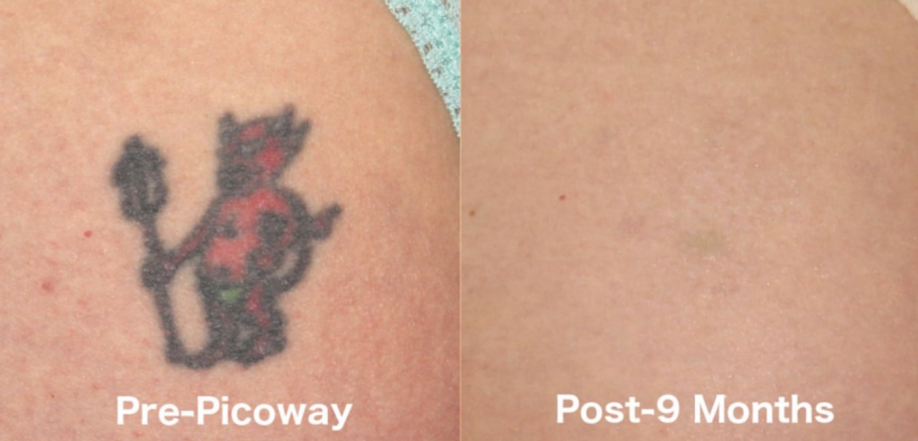 Actual un-retouched patient before and after Picoway laser treatment for tattoo removal by Dr. Groff. Disclaimer: Results may vary from patient to patient. Results are not guaranteed.