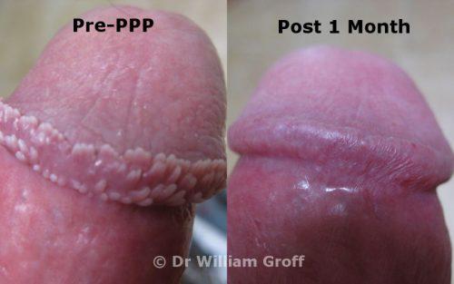 PPP Treatment Del Mar