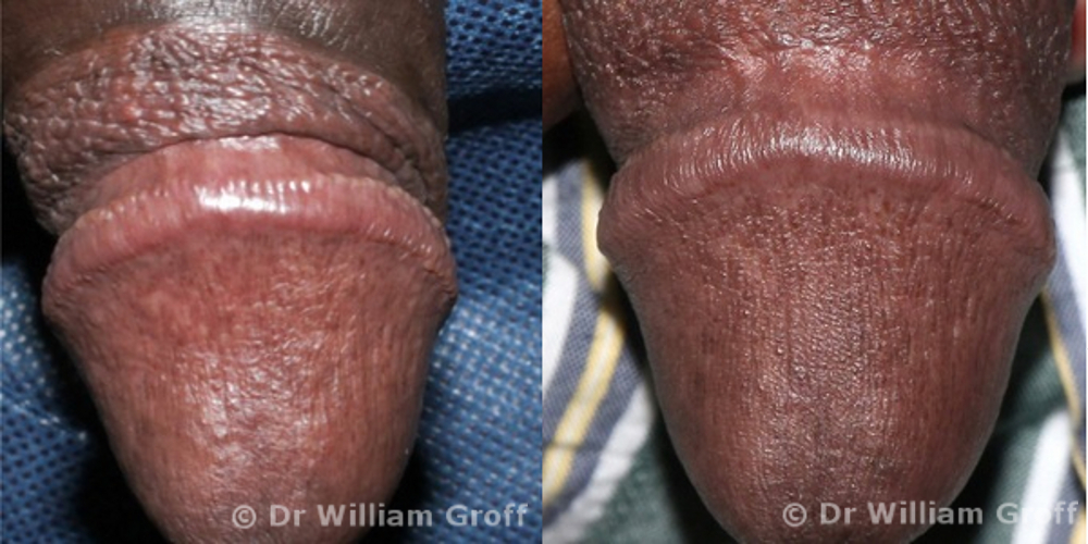 Pearly Penile Papules San Diego, CA | Cosmetic Laser