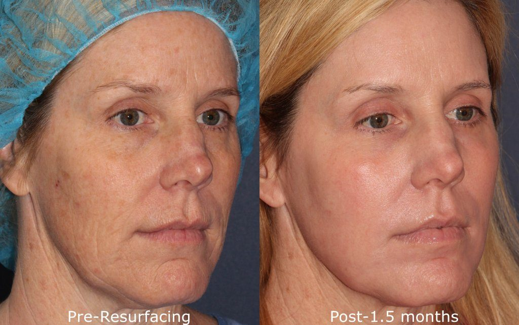 Actual un-retouched patient before and after laser treatment for sun damage and hyperpigmentation by Dr. Groff. Disclaimer: Results may vary from patient to patient. Results are not guaranteed.