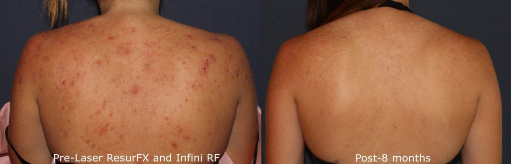Actual un-retouched patient before and after ResurFX laser treatment for acne scars on the back by Dr. Wu. Disclaimer: Results may vary from patient to patient. Results are not guaranteed.