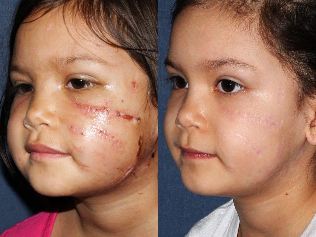 Scar Treatment San Diego, Ca  Cosmetic Laser Dermatology-1114