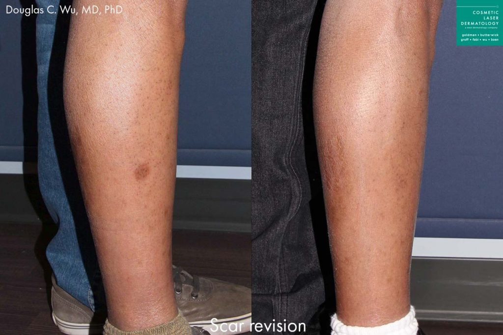 Laser treatment to remove scar from patient's leg by Dr. Wu. Disclaimer: Results may vary from patient to patient. Results are not guaranteed.
