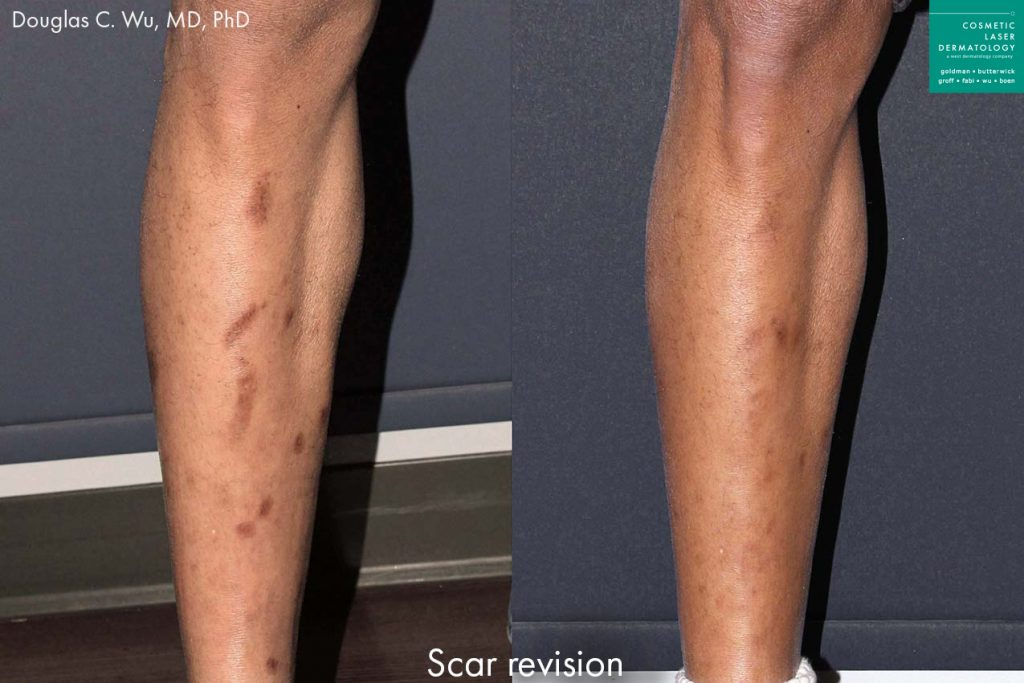 Laser treatment to revise scars on male patient's leg by Dr. Wu. Disclaimer: Results may vary from patient to patient. Results are not guaranteed.