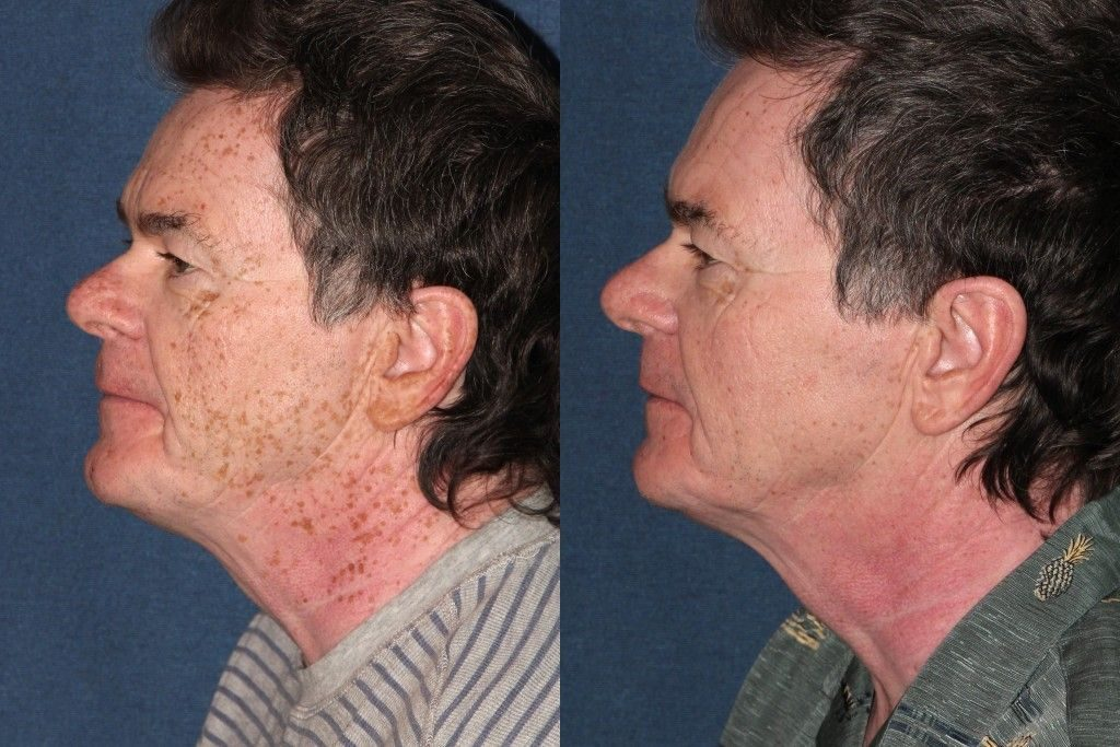 Actual un-retouched patient before and after Sciton laser treatment for dark spots by Dr. Goldman. Disclaimer: Results may vary from patient to patient. Results are not guaranteed.