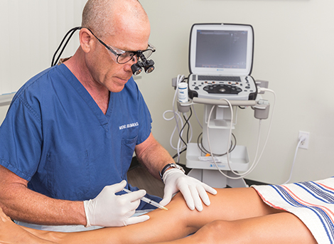 sclerotherapy leg vein treatment in san diego, ca