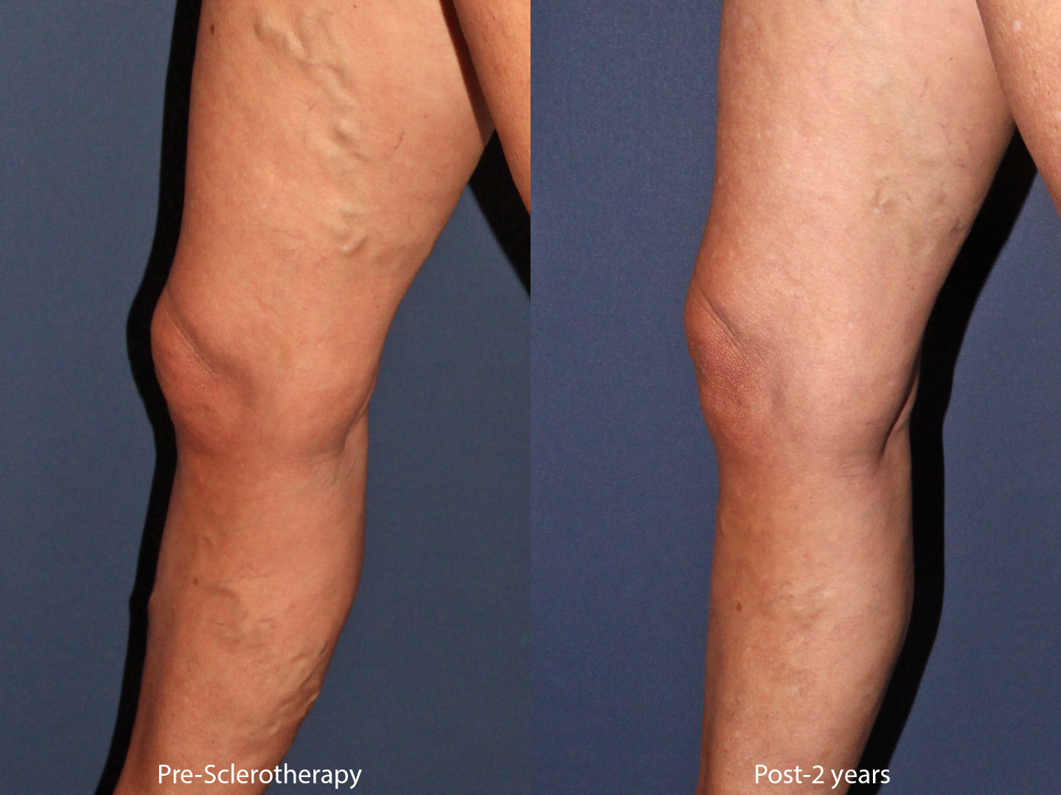 Sclerotherapy San Diego, CA | Cosmetic Laser Dermatology