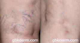leg vein removal treatment in san diego, ca