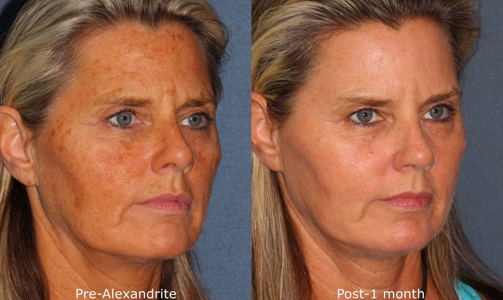 Actual unretouched patient before and after Alexandrite laser to treat sun damage and rejuvenate the skin by Dr. Groff. Disclaimer: Results may vary from patient to patient. Results are not guaranteed.