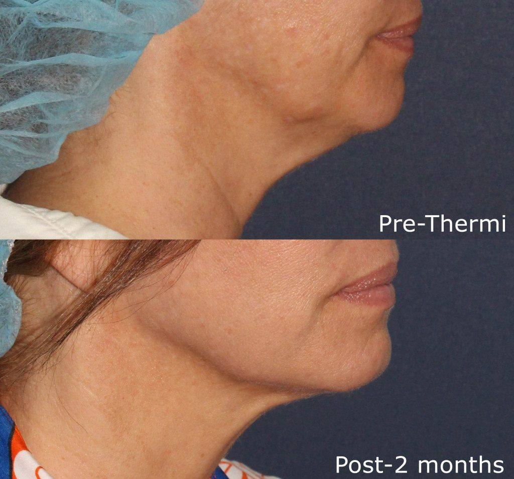 Actual un-retouched patient before and after Thermi treatment for skin laxity under the chin by Dr. Groff. Disclaimer: Results may vary from patient to patient. Results are not guaranteed.