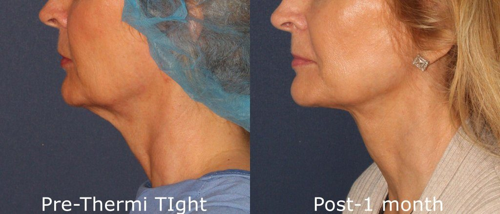 Actual unretouched patient before and after ThermiTight to treat skin laxity under the chin by Dr. Groff. Disclaimer: Results may vary from patient to patient. Results are not guaranteed.