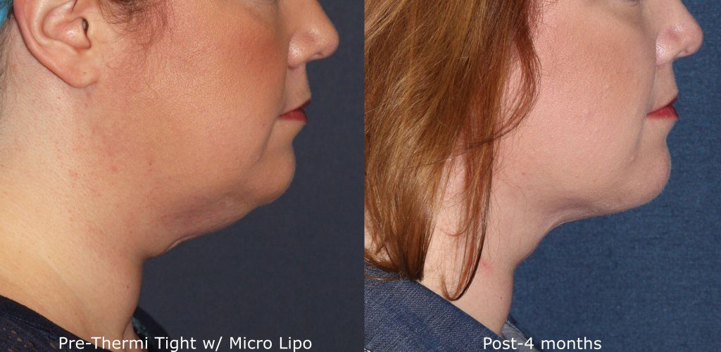 Actual unretouched patient before and after ThermiTight and micro-lipo to reduce submental fat and contour the chin by Dr. Groff. Disclaimer: Results may vary from patient to patient. Results are not guaranteed.
