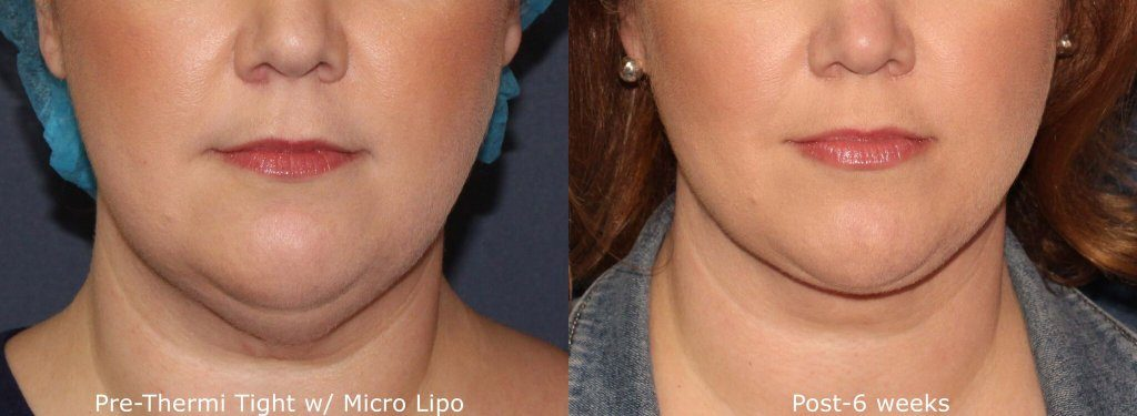 Actual unretouched patient before and after ThermiTight and micro-lipo to treat skin laxity and submental fat by Dr. Groff. Disclaimer: Results may vary from patient to patient. Results are not guaranteed.