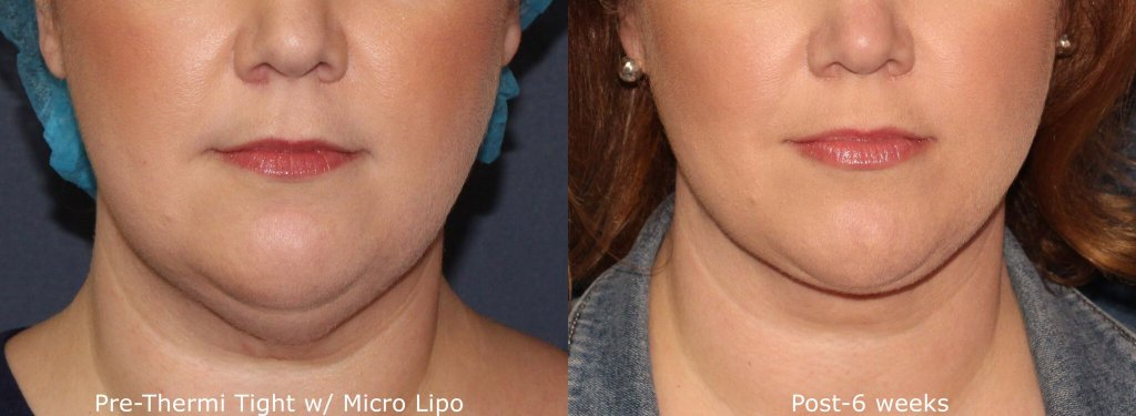 Before and after front image of micro-lipo and ThermiTight treatment on a female's jawline performed by Dr. Groff at our San Diego medical spa