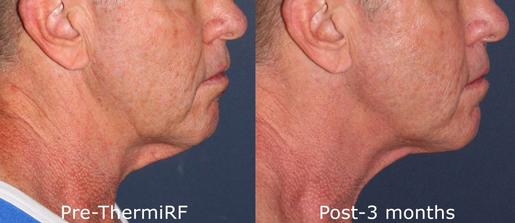 Actual unretouched patient before and after ThermiRF to tighten skin under the chin by Dr. Goldman. Disclaimer: Results may vary from patient to patient. Results are not guaranteed.