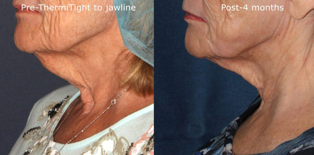 Actual un-retouched patient before and after ThermiTight to treat skin laxity under the chin by Dr. Groff. Disclaimer: Results may vary from patient to patient. Results are not guaranteed.