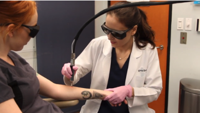 TotalTat3 laser tattoo removal treatment in San Diego