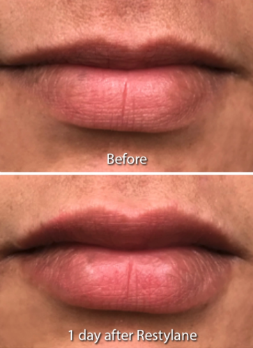 lip filler results in San Diego, CA
