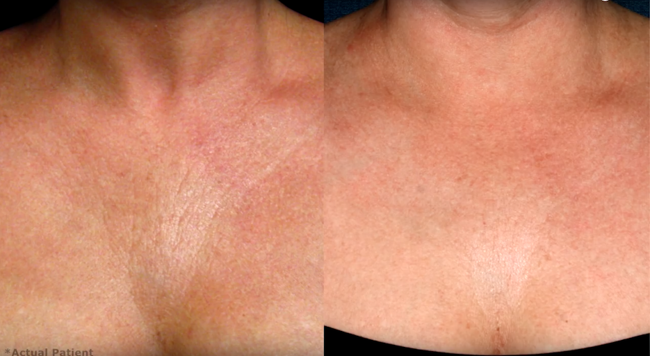 Actual un-retouched patient before and after Ultherapy treatment for chest wrinkles by Dr. Fabi. Disclaimer: Results may vary from patient to patient. Results are not guaranteed.
