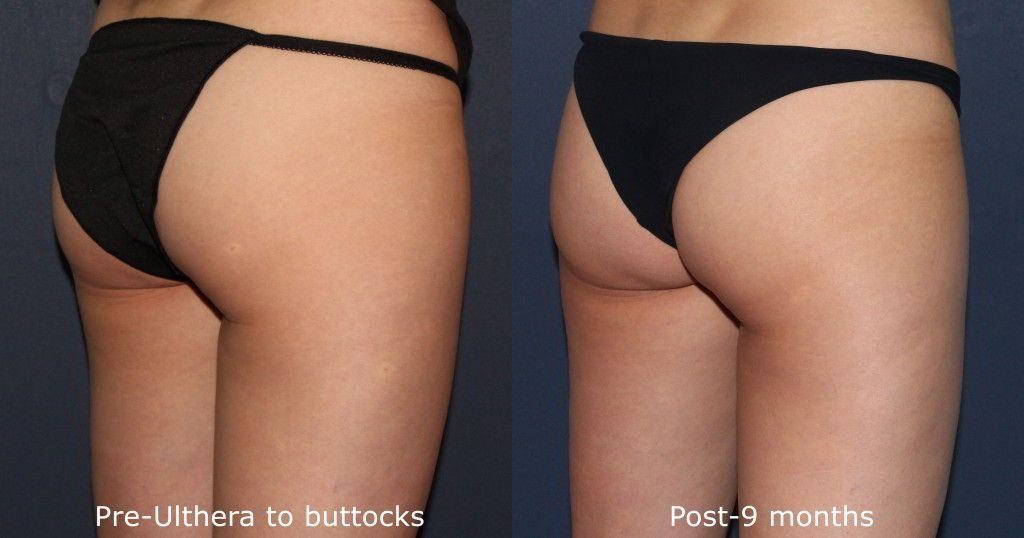 Actual unretouched patient before and after Ultherapy to tighten buttocks by Dr. Fabi. Disclaimer: Results may vary from patient to patient. Results are not guaranteed.