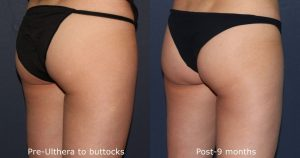 Before and after oblique image of Ultherapy treatment on a female's buttocks performed by Dr. Fabi at our San Diego medical spa