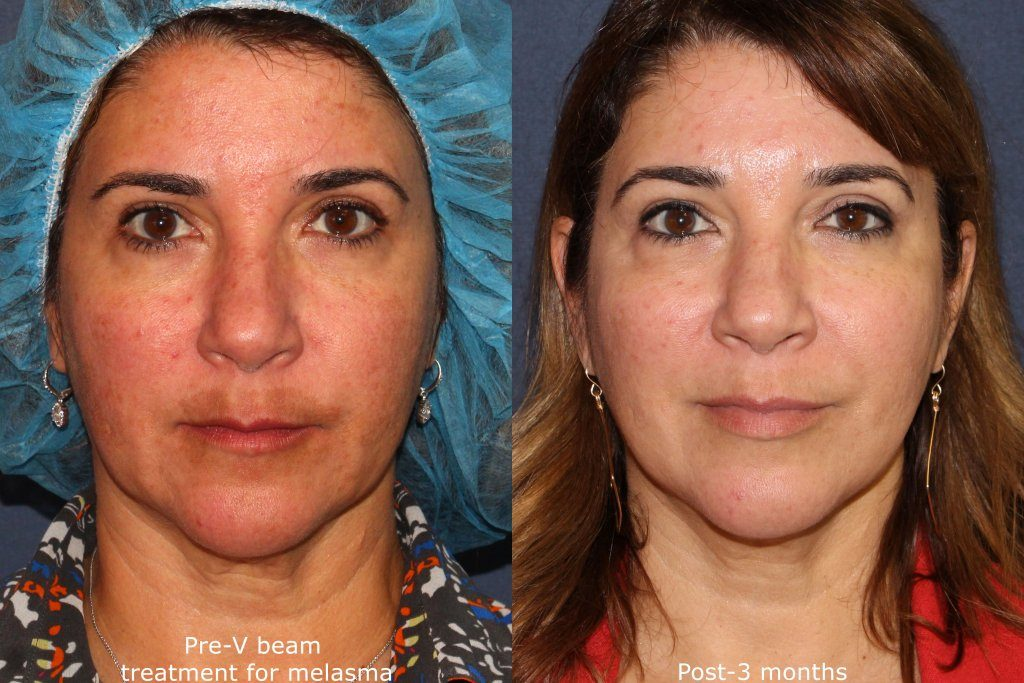 Actual un-retouched patient before and after VBeam treatment to reduce facial redness by Dr. Fabi. Disclaimer: Results may vary from patient to patient. Results are not guaranteed.