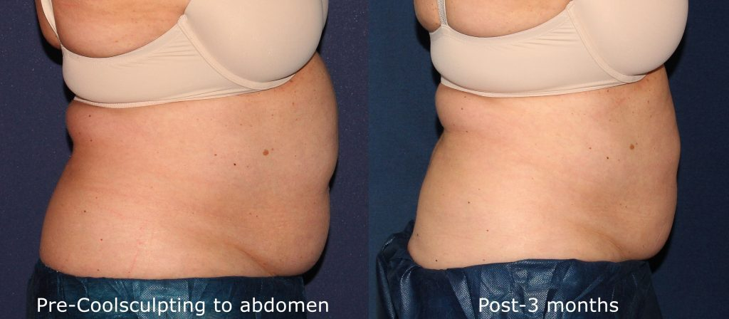 Actual un-retouched patient before and after Coolsculpting to reduce abdominal fat by Dr. Wu. Disclaimer: Results may vary from patient to patient. Results are not guaranteed.