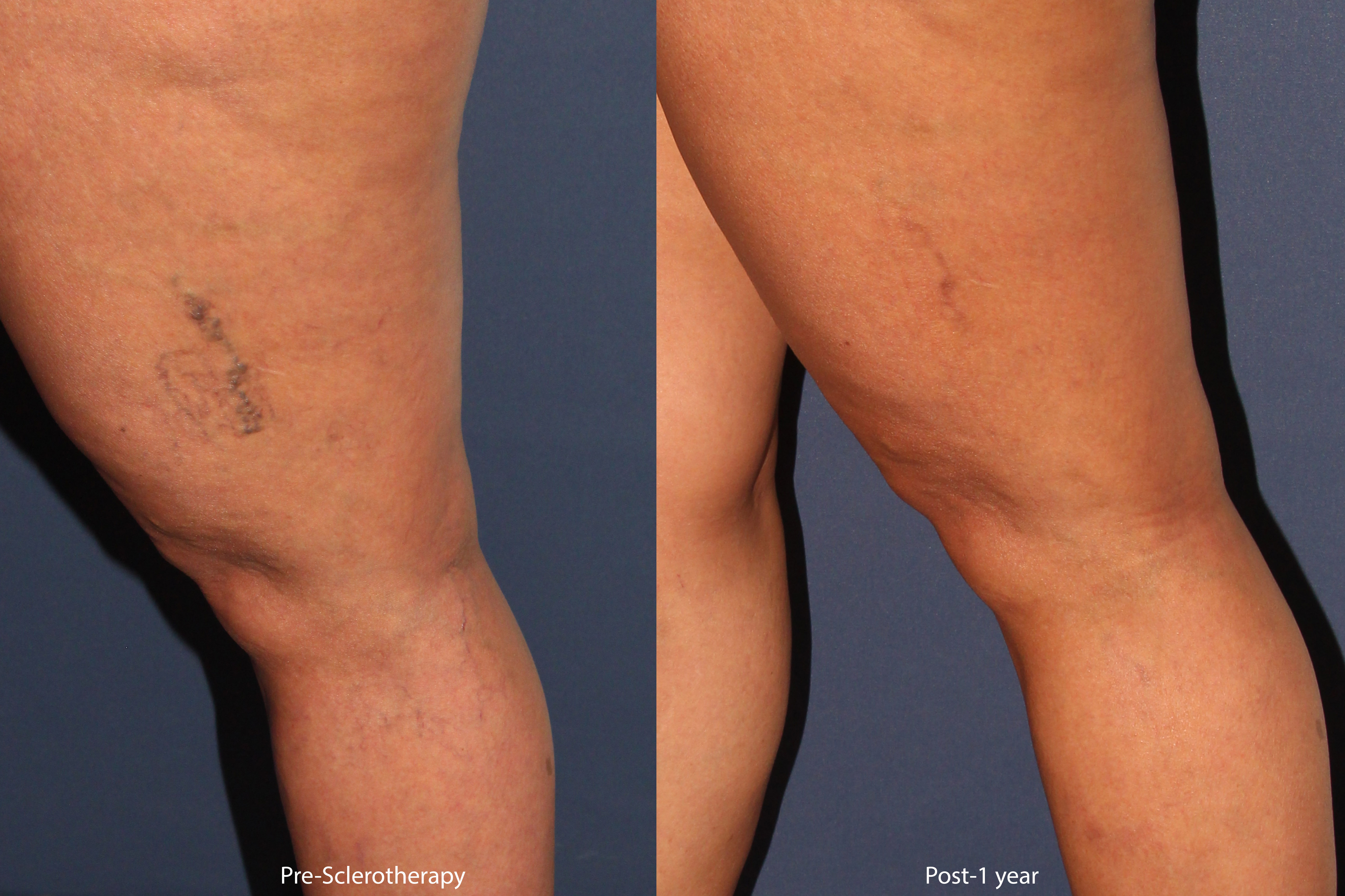 Sclerotherapy San Diego, CA   Cosmetic Laser Dermatology