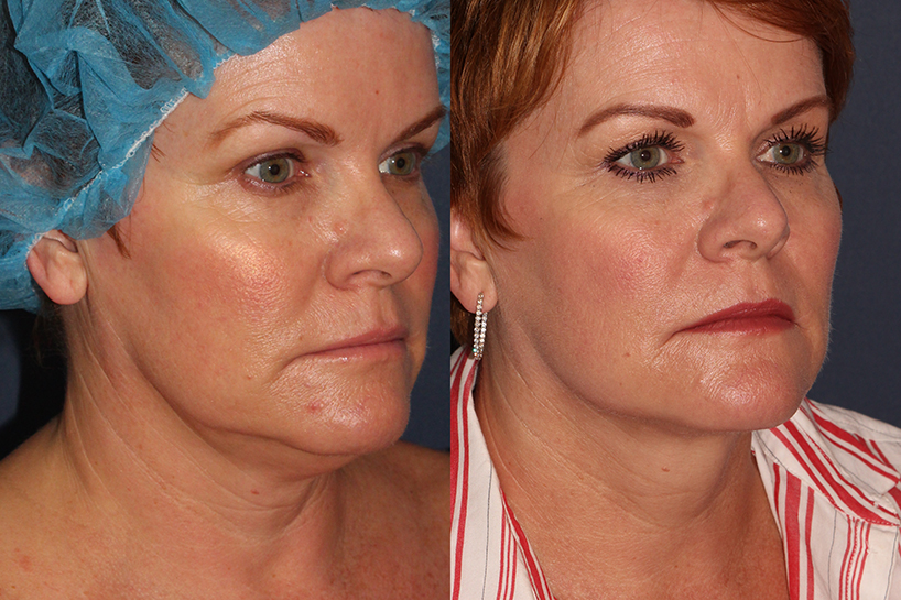 Actual un-retouched patient before and after ThermiTight for chin and neck contouring by Dr. Wu. Disclaimer: Results may vary from patient to patient. Results are not guaranteed